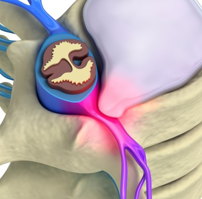 Disc-Herniation-Downtown-Chiropractor