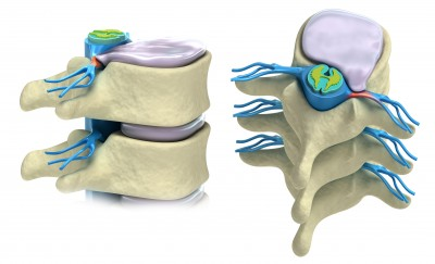 Disc-Herniation-Two-Views