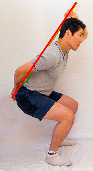 Disc Herniation: Learning to Squat Using A Broomstick