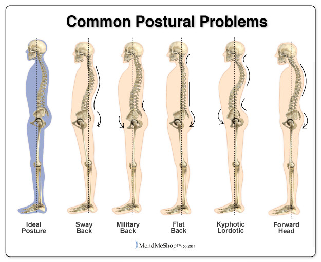 How to Improve Posture: Common Postural Problems Toronto Chiropractor Downtown