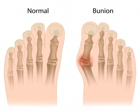 Keep the Bunion Surgeon Away With These Bunion Tips