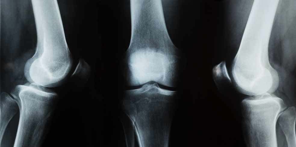 Knee X-rays:Exercises For Derrick Rose After Knee Meniscus Surgery Toronto Downtown Chiropractor