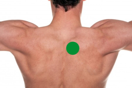 Upper Back Pain:The Green Circle Shows The Typical Area Of Upper Back Pain Near The Shoulder Blade Causing Shoulder Blade Pain- Toronto Downtown Chiropractor