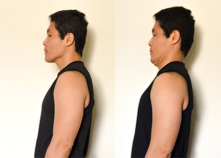 Cervical Spine Pain Exercise:Double Chin (Retraction) -Toronto Downtown Chiropractor
