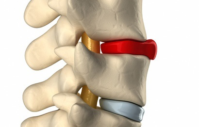 Disc Bulge: Why Is Your Disc Bulging & Best Treatments For Disc Bulges