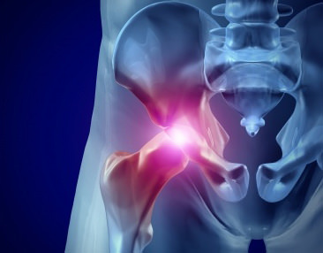 Snapping Hip Syndrome-Hip Pain: Toronto Downtown Chiropractor