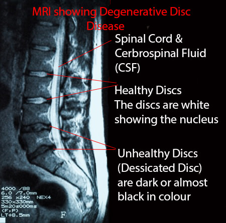 MRI of Degnerative Disc DiseaseMRI Showing The Lower Back With Healthy Disc Near The Top With The Bottom Four Being Narrowed, Darker in Color With Disc Bulges: Degenerative Disc Disease: Downtown Toronto Chiropractic