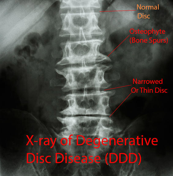 X-ray of Degnerative Disc Disease DDD: Osteophytes, Narrowed (Thin) Disc: Downtown Toronto Chiropractic