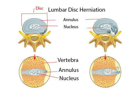 Lumbar Disc Herniation Vertebral Foramen - Spinal Stenosis Comprehensive Guide: 5 Exercises For Your Spinal Stenosis & Lateral Stenosis: Toronto Downtown Chiropractor