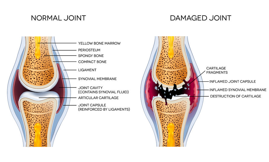 Osteoarthritis: Damaged joint and healthy joint detailed diagram | Best Toronto Chiropractor Dr Ken Nakamura Downtown Toronto Chiropractor